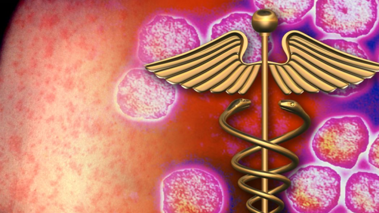Measles outbreaks worsen