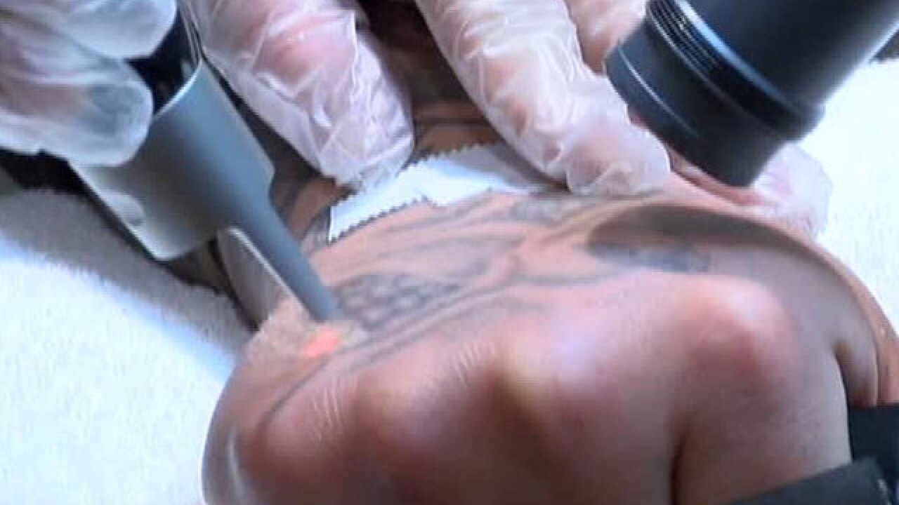 Denver-area tattoo shop aims to offer free tattoo removal for former ...