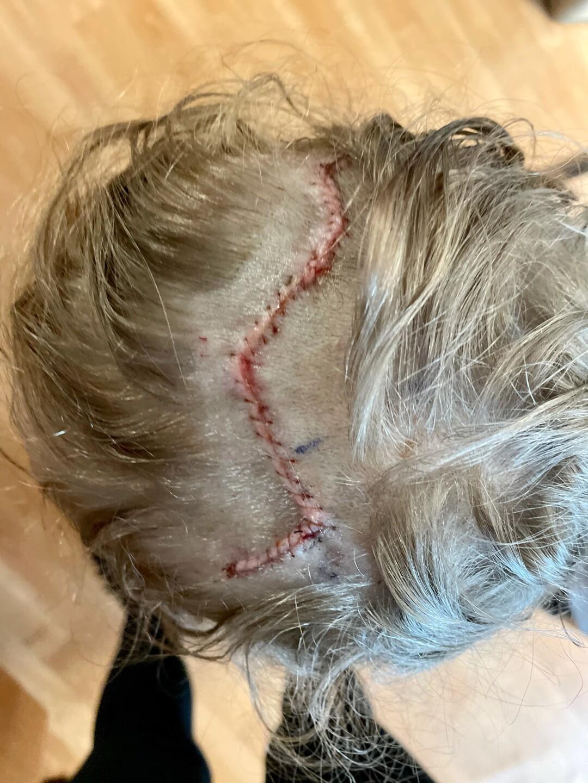 Gray Scott stitches