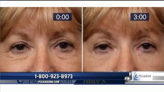 Look your best for the holidays with Plexaderm