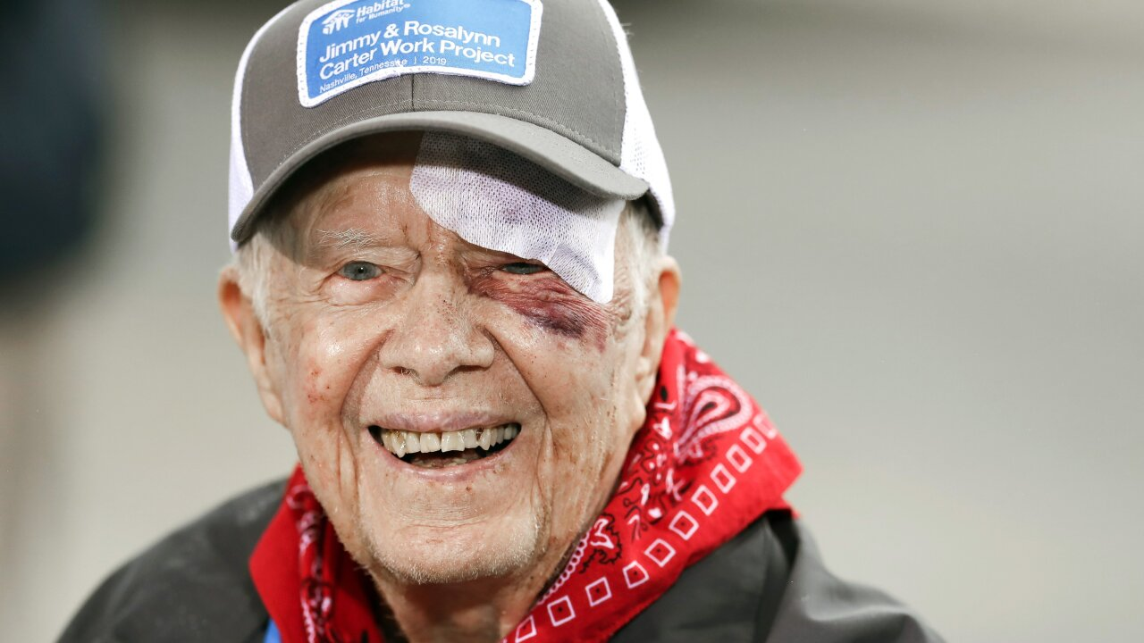 Despite 14 stitches and a black eye, Jimmy Carter is back building homes