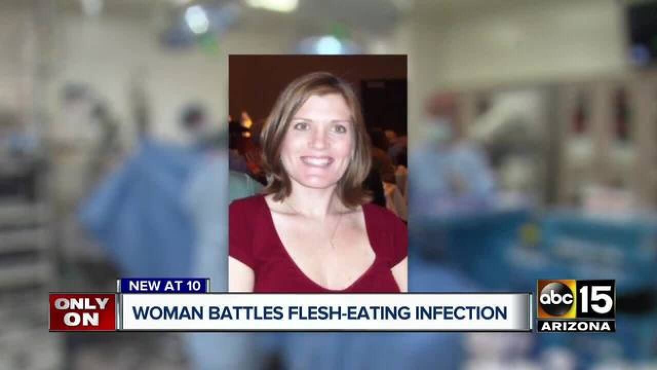 Ariz. woman diagnosed with flesh-eating disease