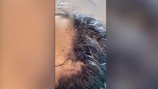 Lice Angels viral TikTok video