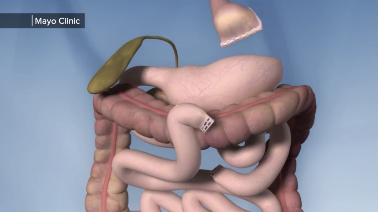 Photo 3 gastric bypass.png