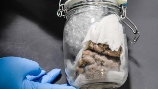 Human brain confiscated at U.S.-Canadian border in Michigan