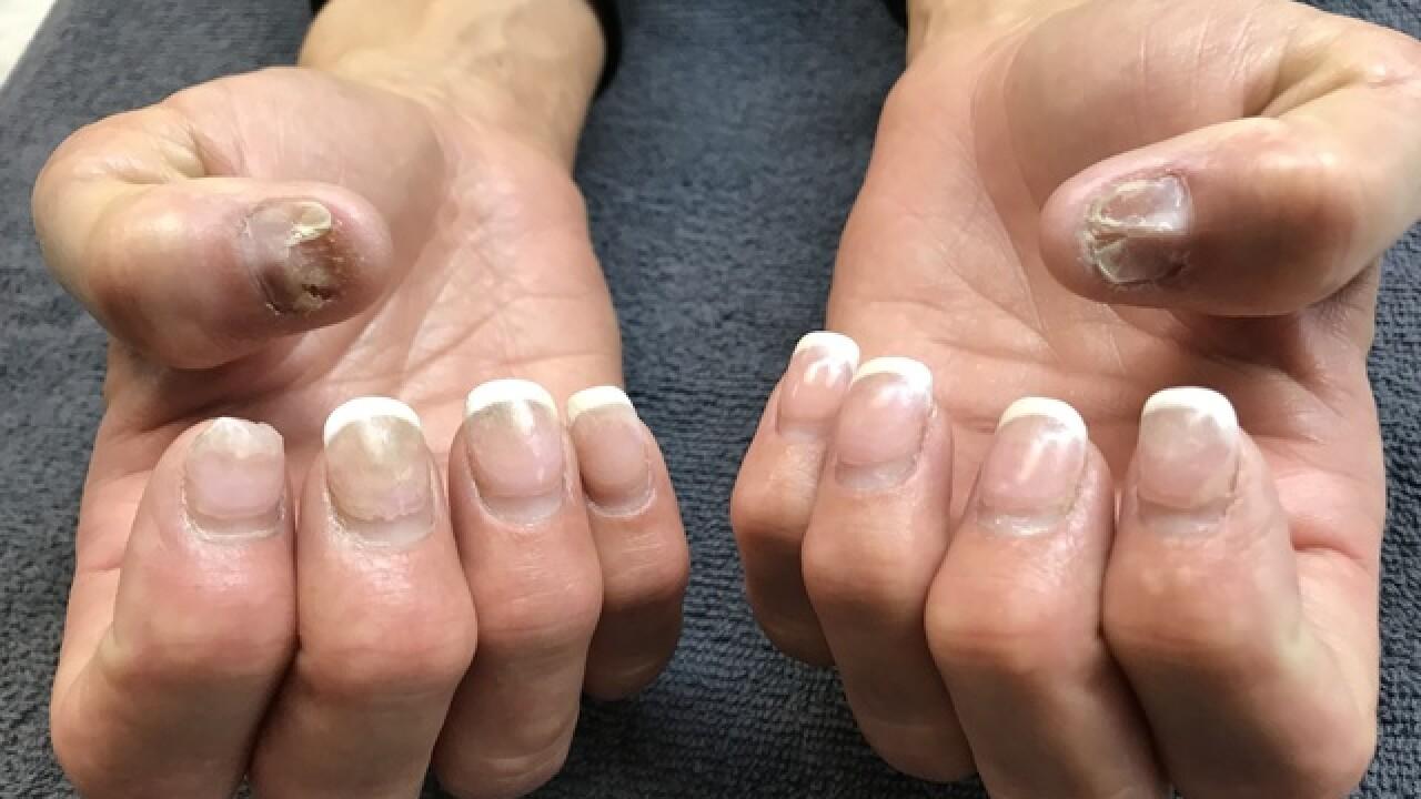 Nail Salons Using Industrial Grade Liquid Monomer Putting