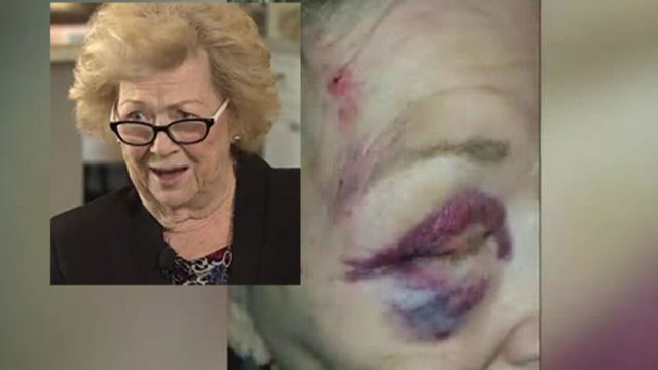 Grandmother sues Mesa, Arizona, police for excessive force