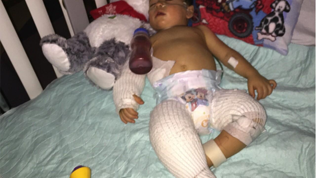 Graphic photos: Baby burned at preschool