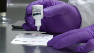 COVID-19 antigen test promises results in minutes and no lab is needed
