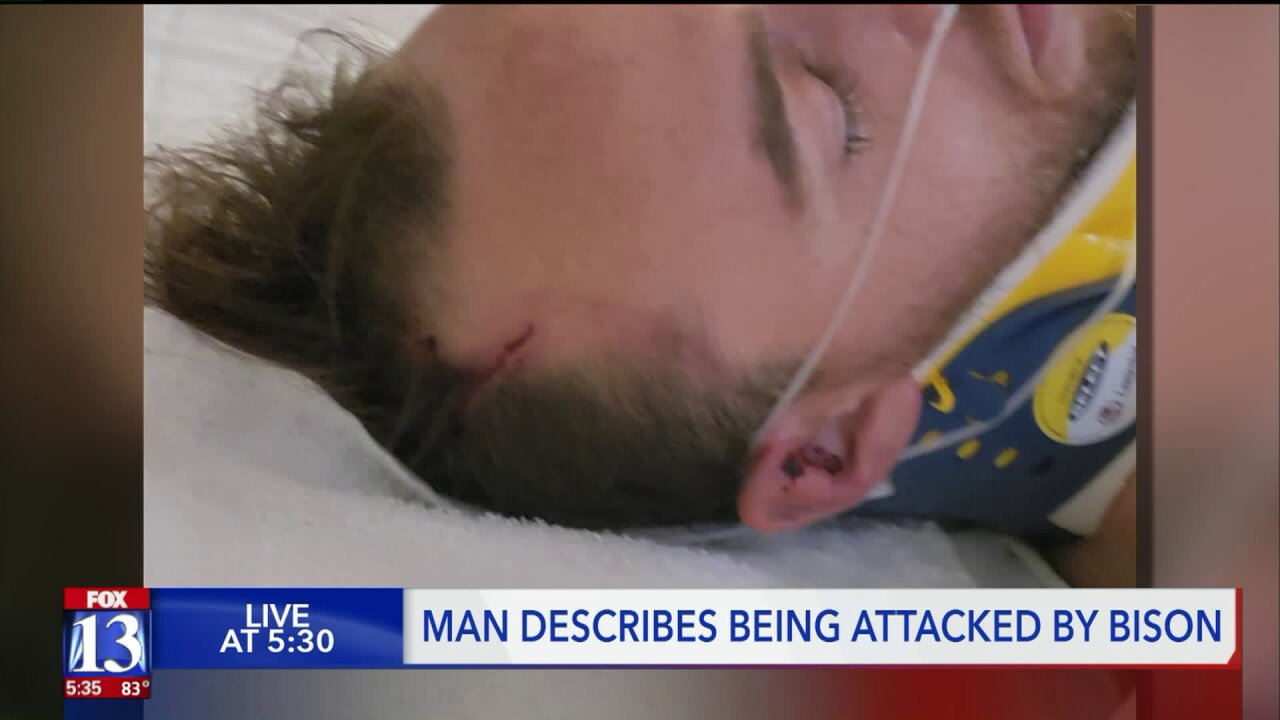 Bison attack victim released from hospital, shares frightening story