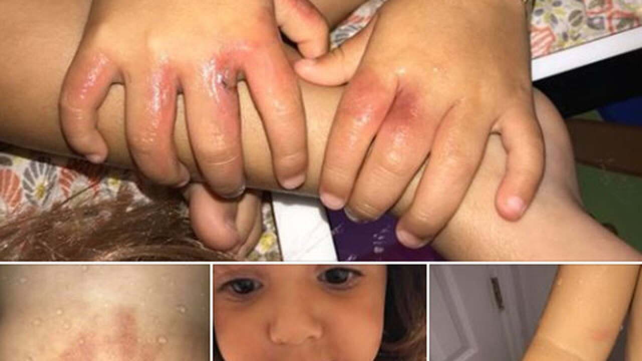 3-year-old hospitalized after mom says she contracted bacterial infection at South Florida beach