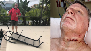 'I have a couple guardian angels' | Man recovering after patio furniture slices neck