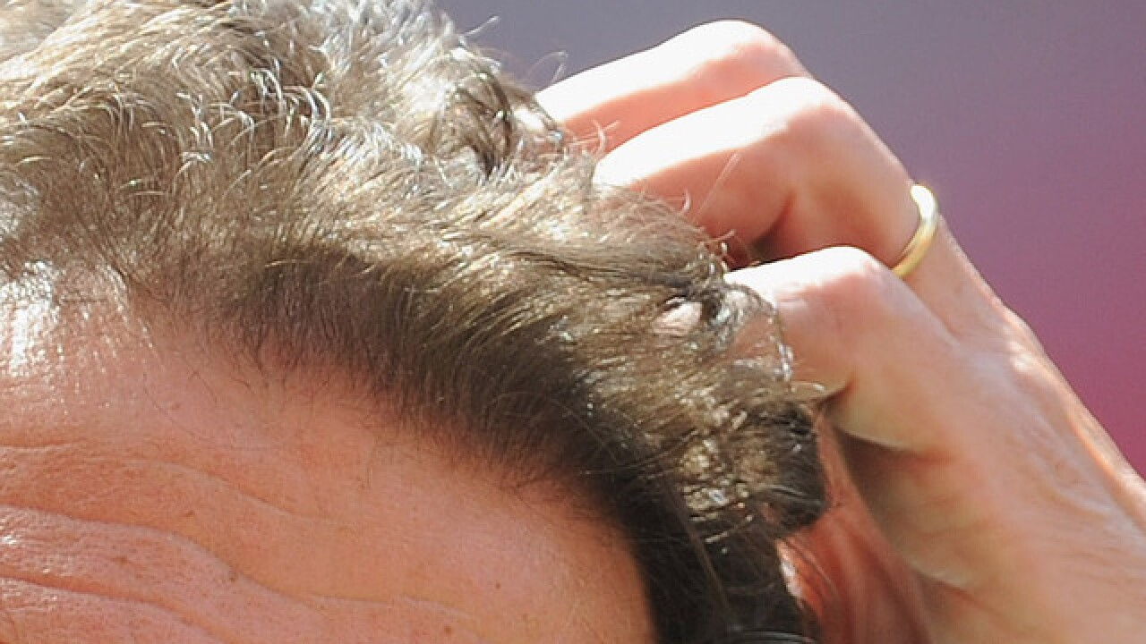 'Super lice' found in 48 states, study says