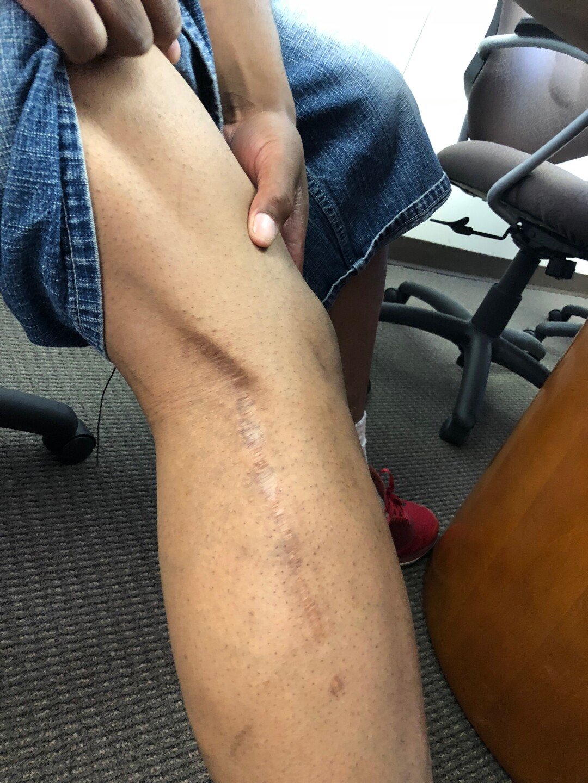 Darcel Harris' leg.
